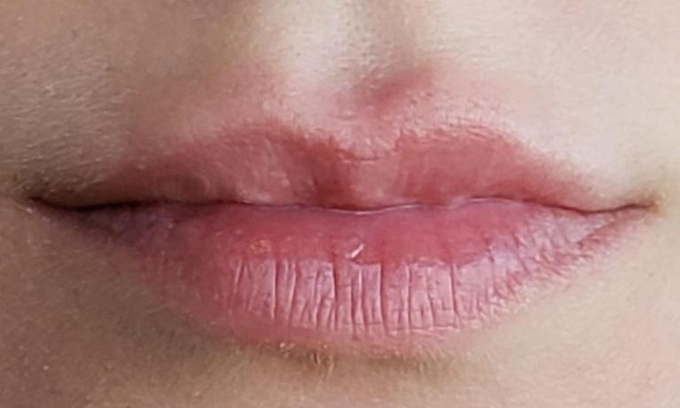 Juvederm-Used-to-Plump-Upper-Lip-After-Image