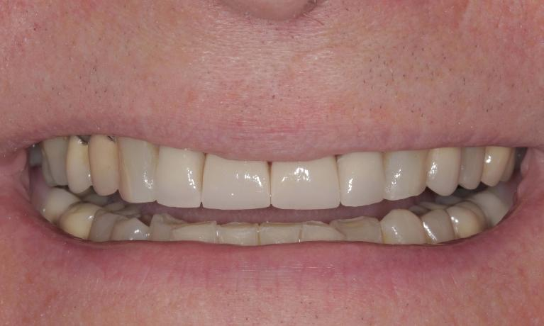 New-porcelain-crowns-and-veneers-After-Image