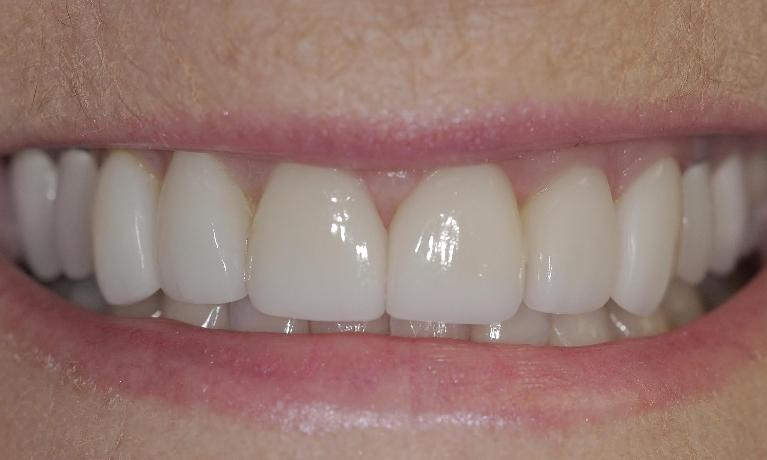 New-porcelain-veneers-After-Image
