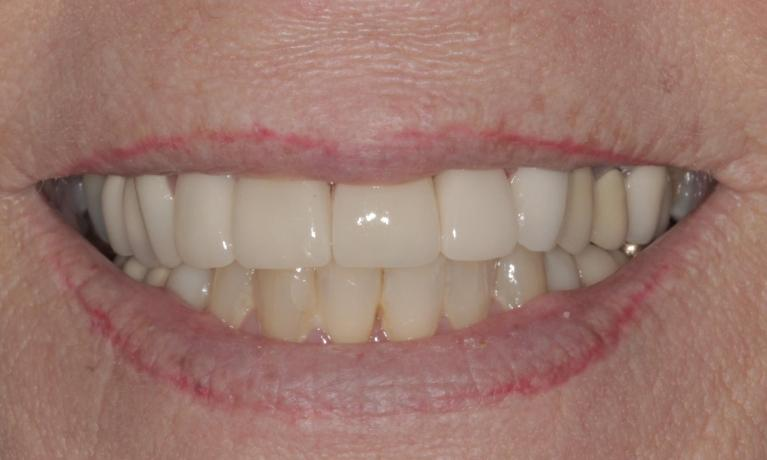 Porcelain-veneers-to-fix-chipped-stained-teeth-After-Image
