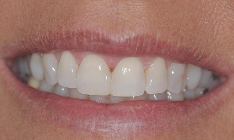 Resin-veneers-to-improve-smile-After-Image