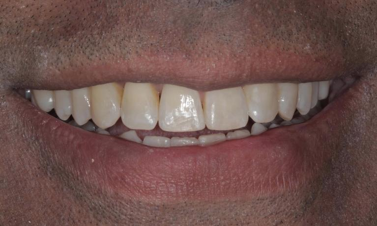 Space-closed-with-Clear-Correct-clear-aligners-After-Image