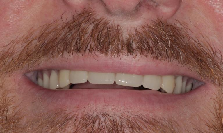 New-Natural-Looking-Upper-Denture-After-Image