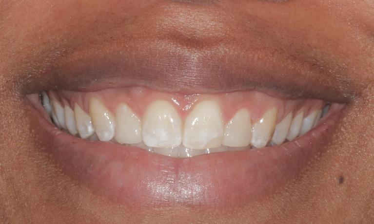 Laser-and-Cosmetic-Bonded-Veneers-After-Image