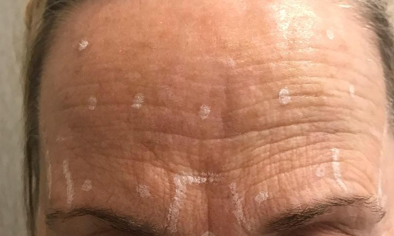 Another-Xeomin-Botox-case-Before-Image