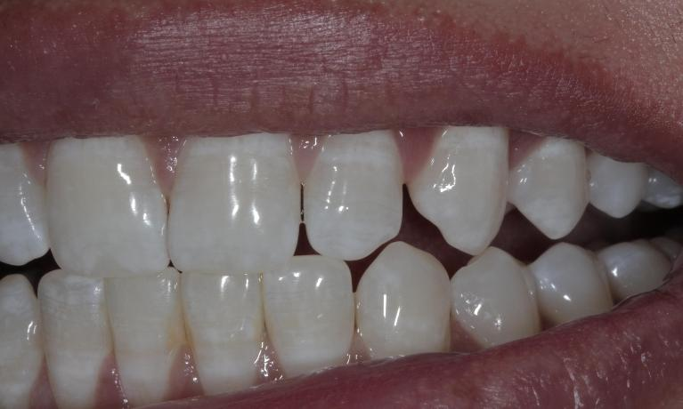 Bonding-to-close-space-between-teeth-Before-Image