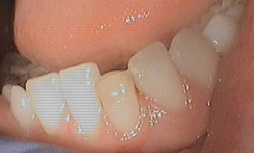 Bonding-to-repair-fractured-discolored-front-tooth-Before-Image