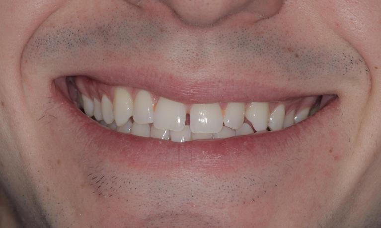 Clear-Aligners-closed-this-space-in-under-4-months-Before-Image