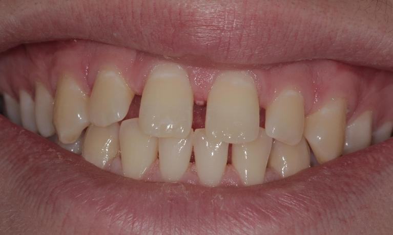 Clear-Correct-invisible-braces-and-cosmetic-bonding-Before-Image