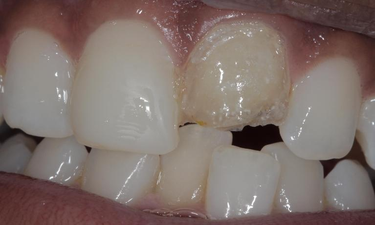 Cosmetic-bonded-veneer-Before-Image