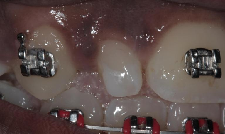 Bonding-to-Improve-Size-of-Lateral-Incisor-Before-Image