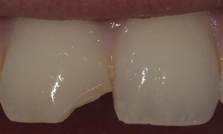 Cosmetic-bonding-to-repair-fractured-tooth-Before-Image
