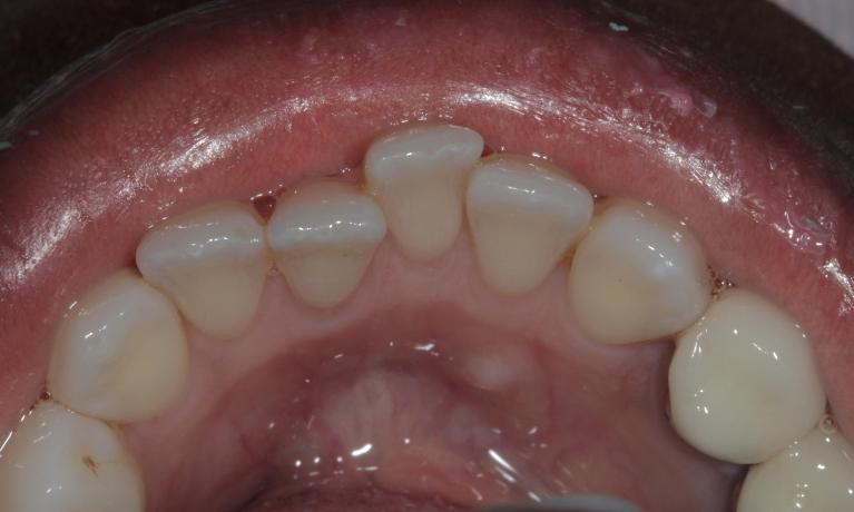 Great-result-with-Clear-Correct-clear-aligners-Before-Image