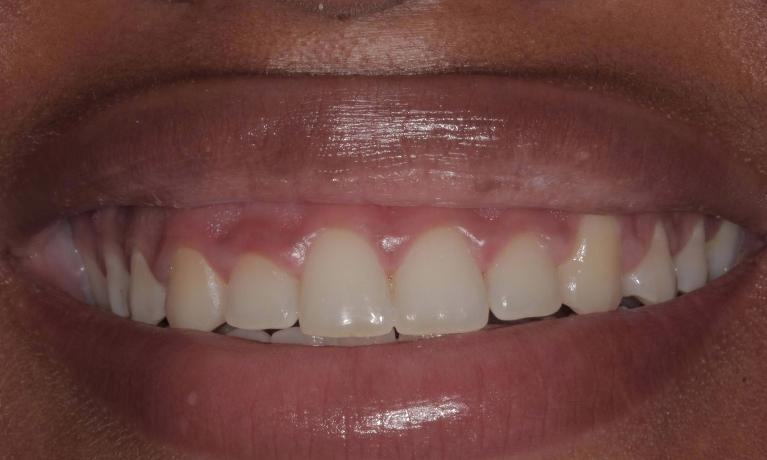 Gum-re-shaping-to-improve-smile-Before-Image