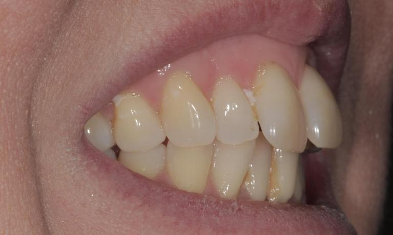 Inman-Aligner-and-cosmetic-bonding-Before-Image