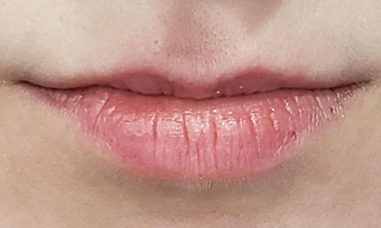 Juvederm-Used-to-Plump-Upper-Lip-Before-Image