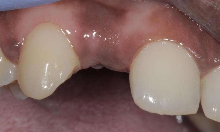 Maryland-Bridge-to-replace-front-tooth-Before-Image