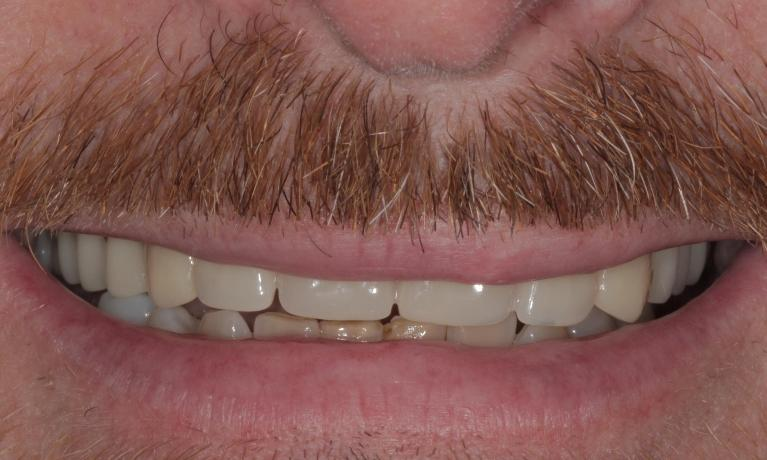 New-natural-looking-upper-denture-Before-Image