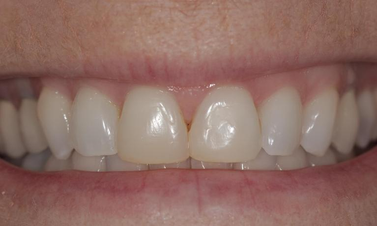 New-porcelain-veneers-Before-Image