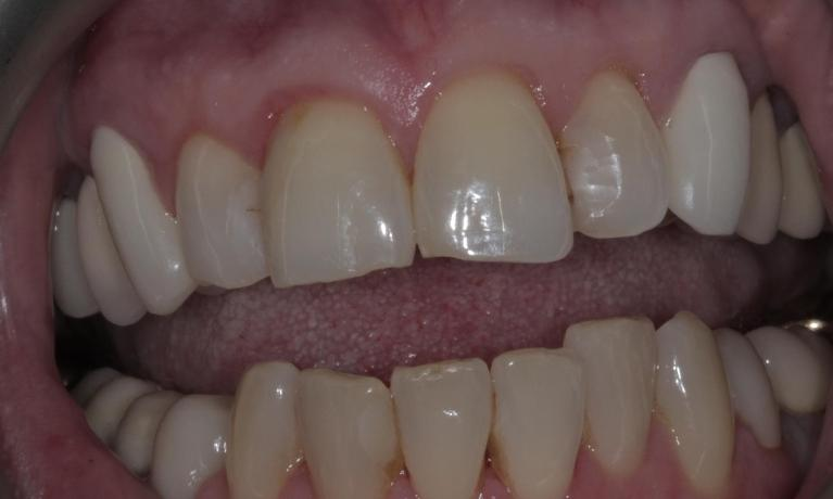 Porcelain-veneers-to-fix-chipped-stained-teeth-Before-Image