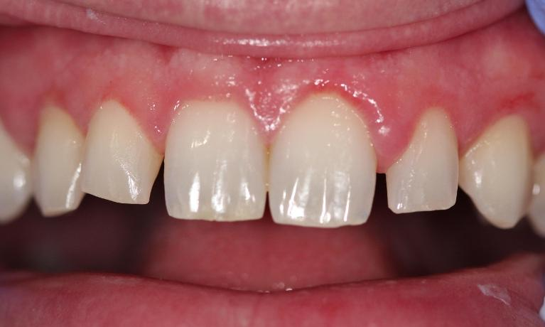 Resin-veneers-to-improve-smile-Before-Image