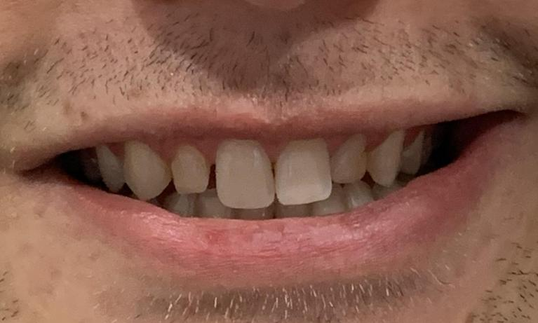 Cosmetic-bonding-and-Clear-Aligners-Before-Image