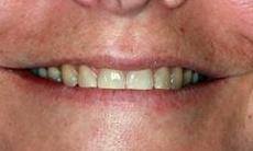 Beautiful-new-smile-Before-Image