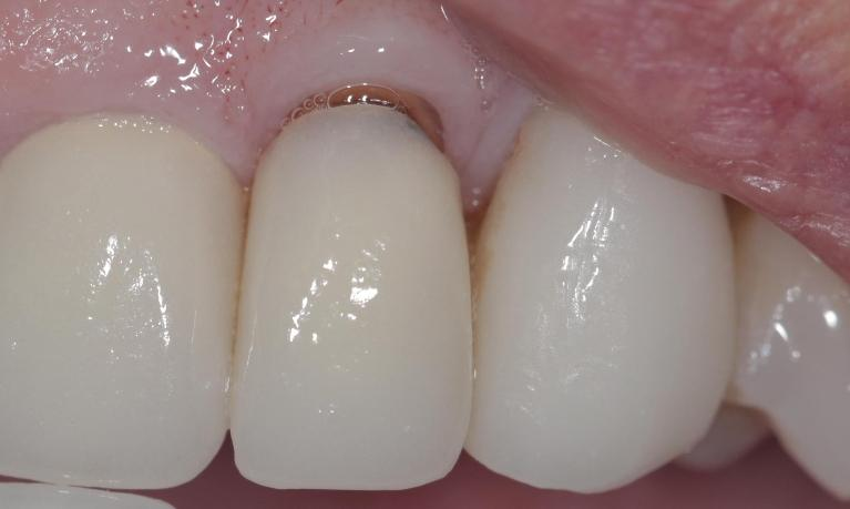 New-Porcelain-Crown-Before-Image